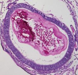 「MLX56」を与えたエリサンの消化管。内部の膜が肥大化している(農研機構提供)